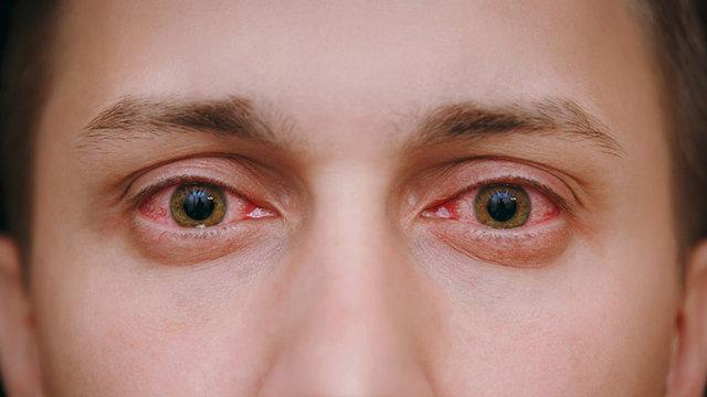 حفظ سلامت چشم ها در فصل سرما
