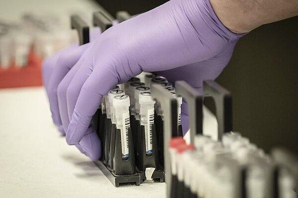 همکاری150 محقق برای کشف درمان های جدید کووید 19