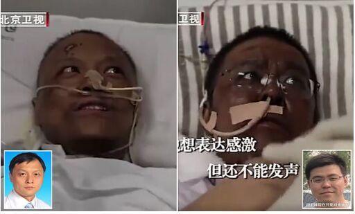 پوست بدن دو پزشک چینی با کرونا سیاه شد