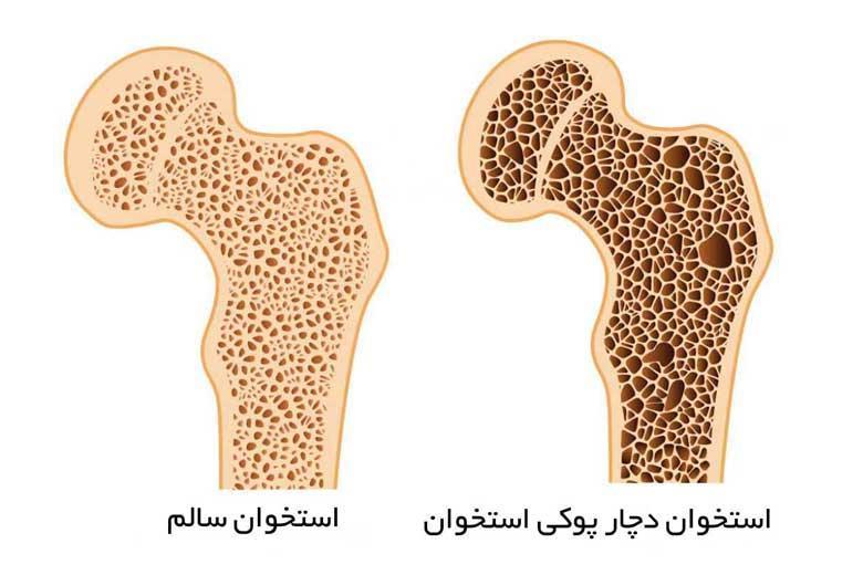 عوامل پوکی استخوان زودتر از 50 سالگی بروز می کند